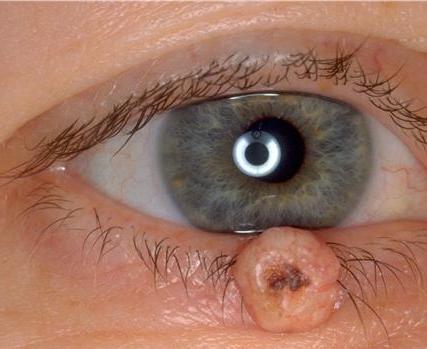 que es papiloma en los ojos