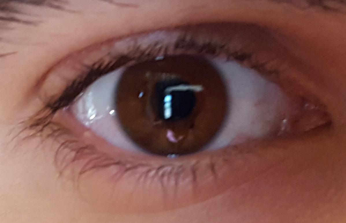 que es papiloma en los ojos tratamentul copiilor cu efect cu spectru larg