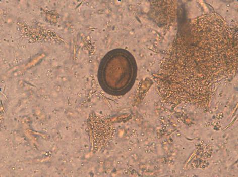 how do you contract human papillomavirus plica duodenalis