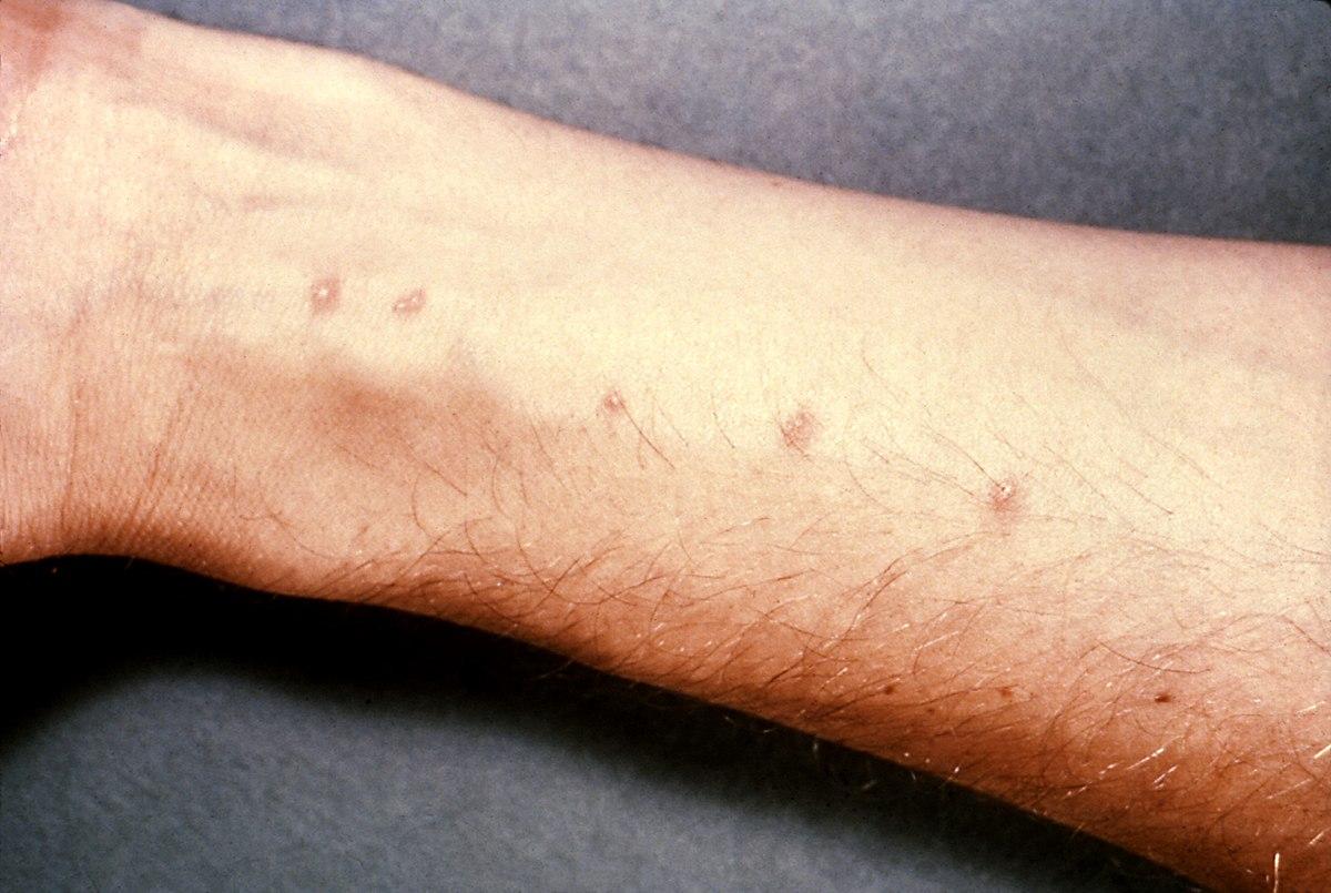 Schistosomiasis ghana