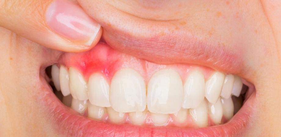 simptomele bolilor dentare squamous cell papilloma la gi