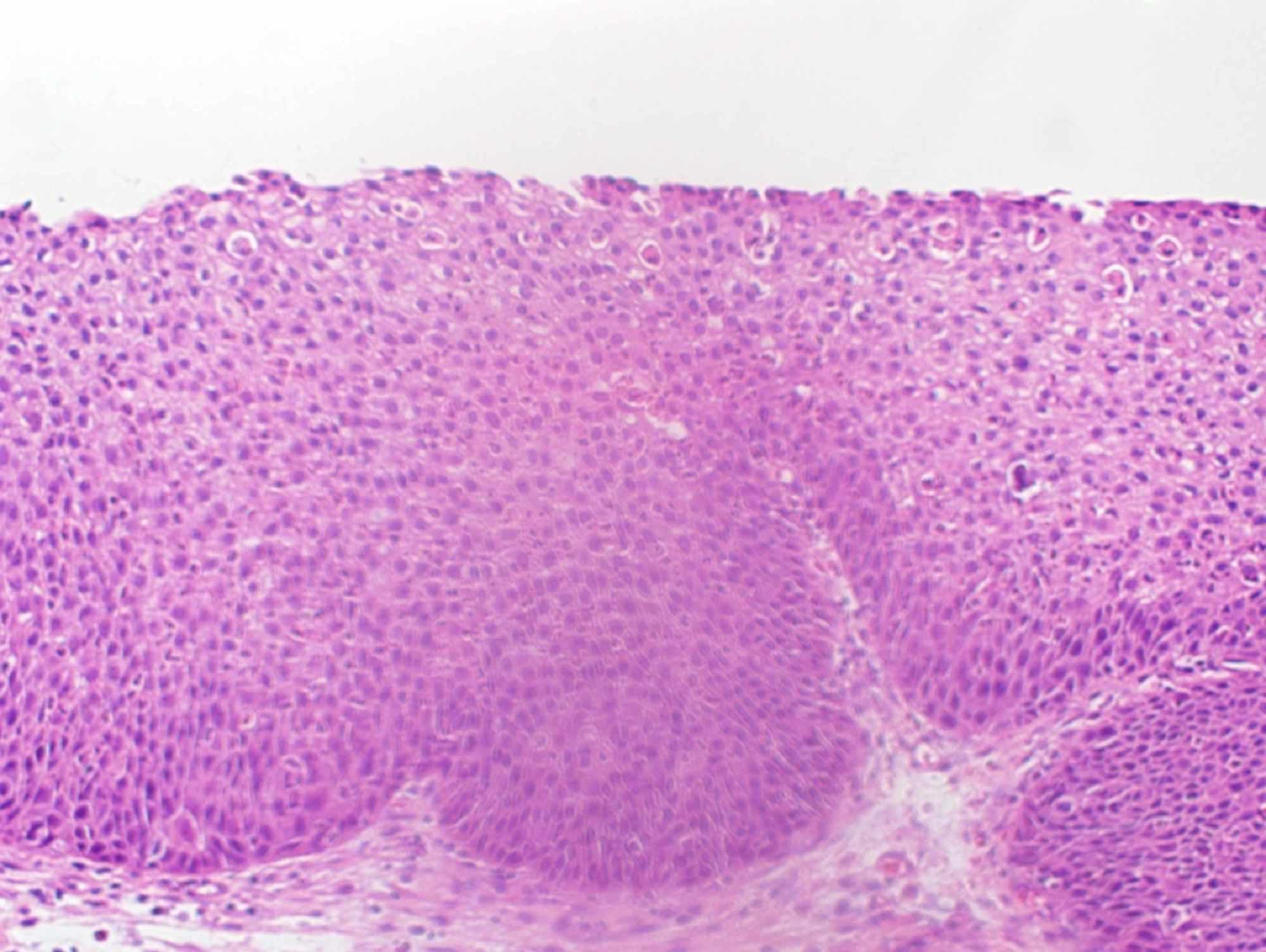 papilomii genitali