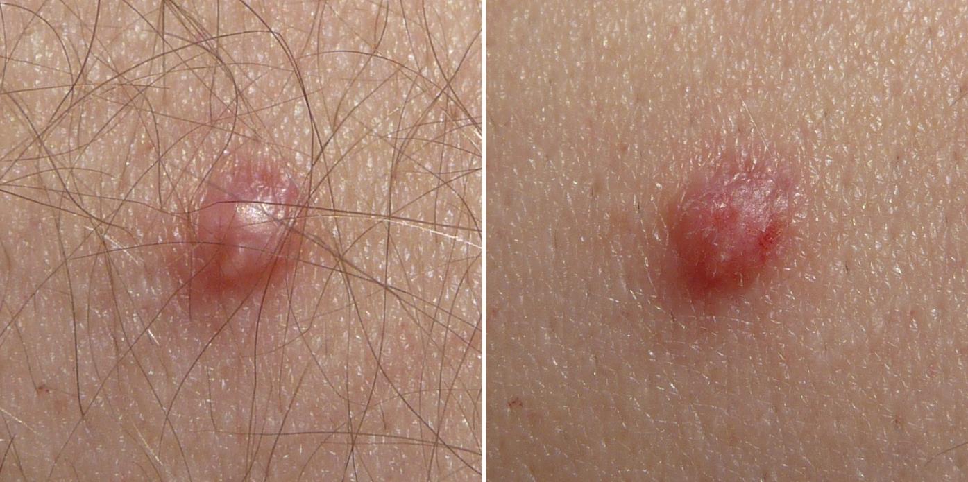 anemie z nedostatku zeleza oxiuros enterobius vermicularis tratamiento