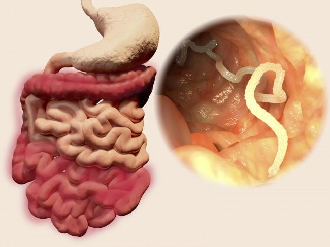 simptome de tenioză)