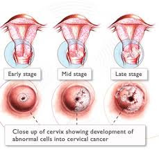 tratamiento papiloma virus en mujeres helminth treatment guidelines