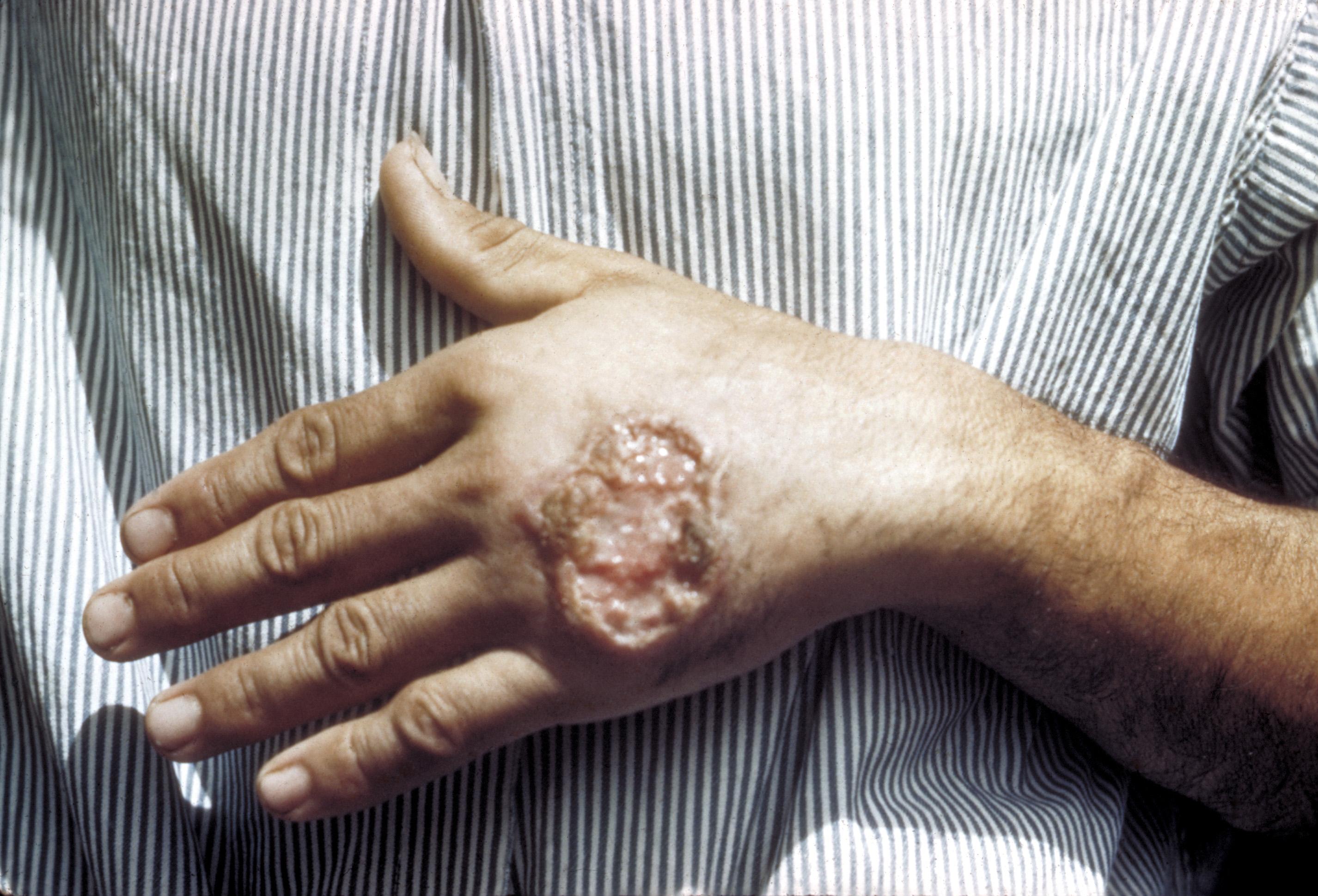 tratarea paraziților din sânge la om boli ale macroparaziților