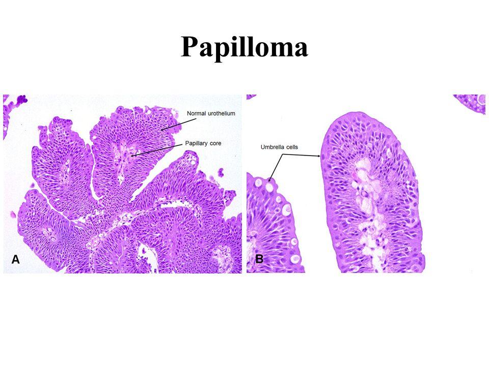 papilloma urothelial histopathology