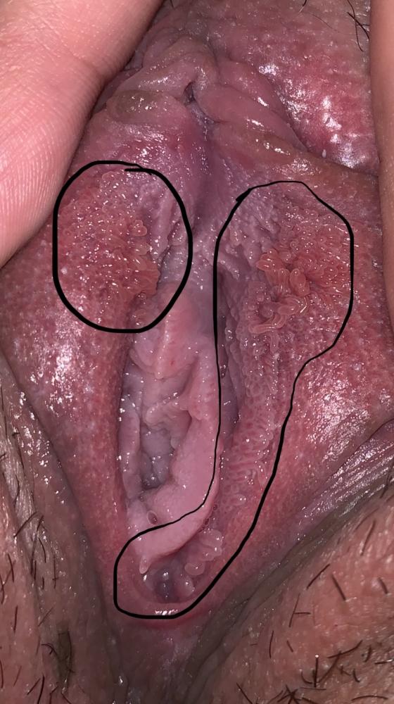 tratament prin viermi ce pastile provin din viermi
