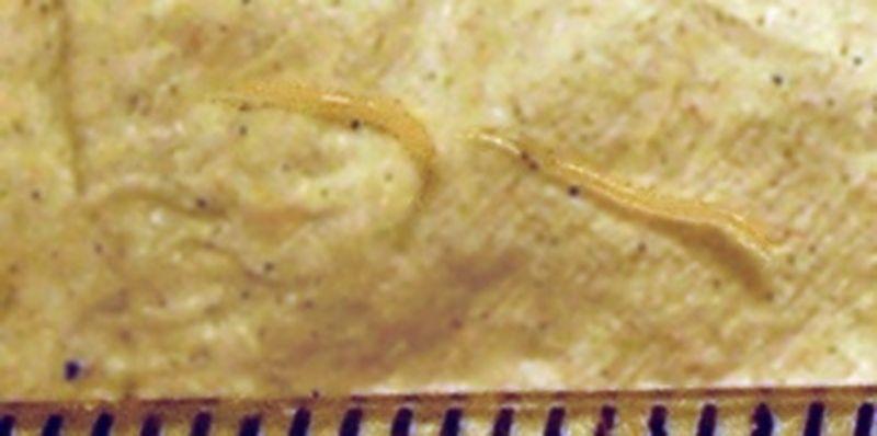 kako se otkriti paraziti u organizmu