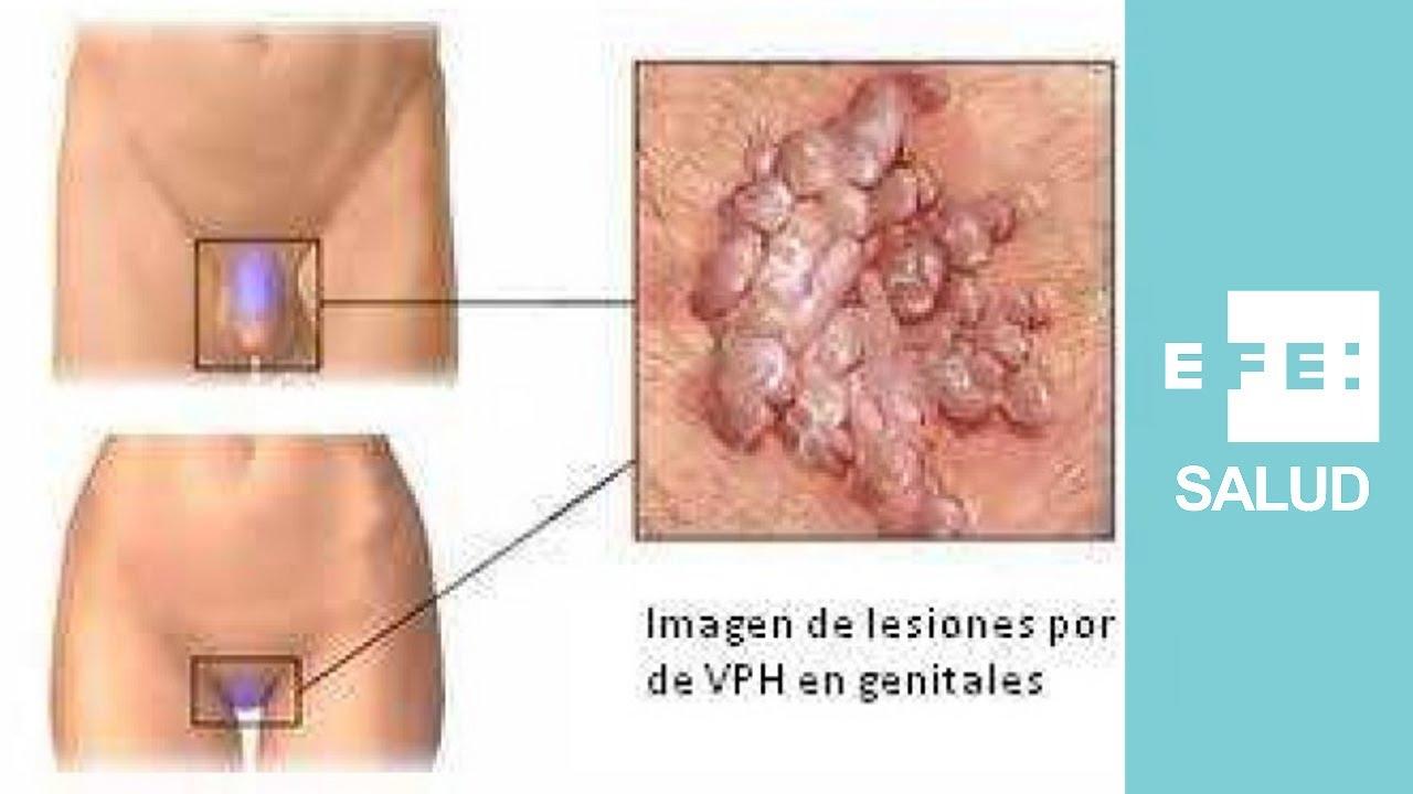 virus papiloma en la mujer