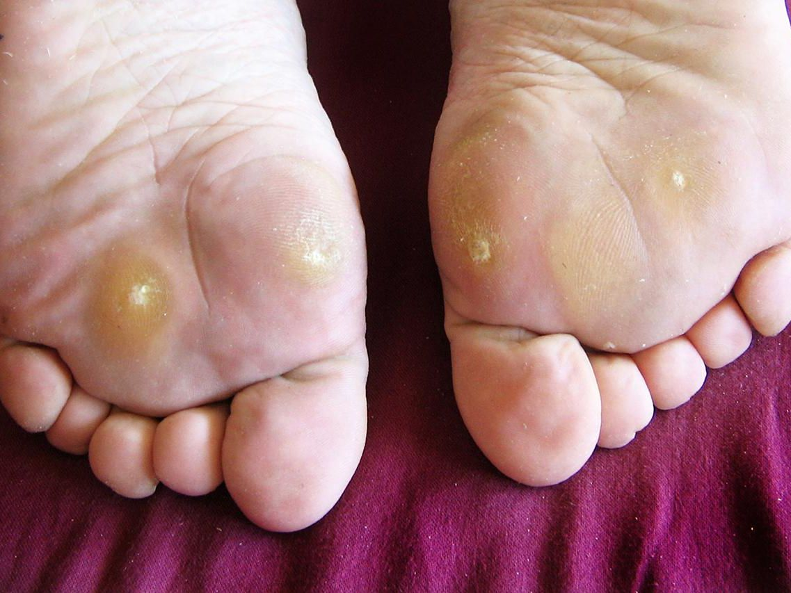 wart on foot extremely painful