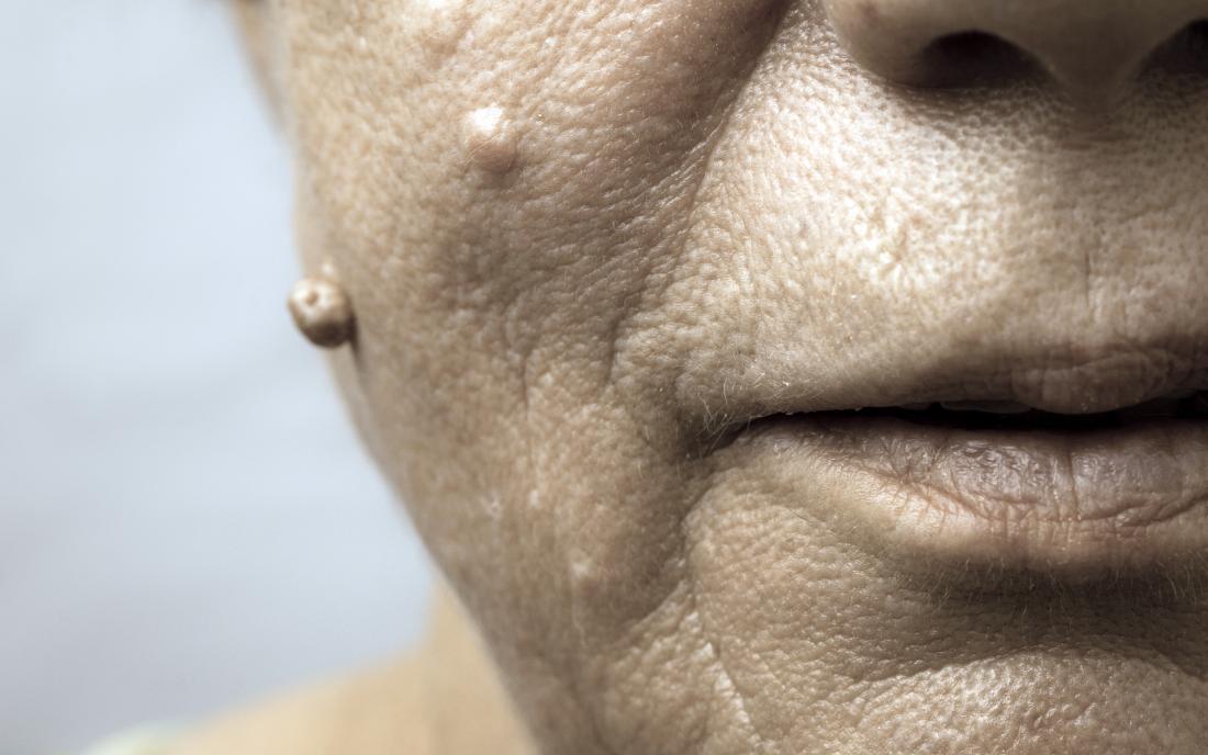 wart treatment face