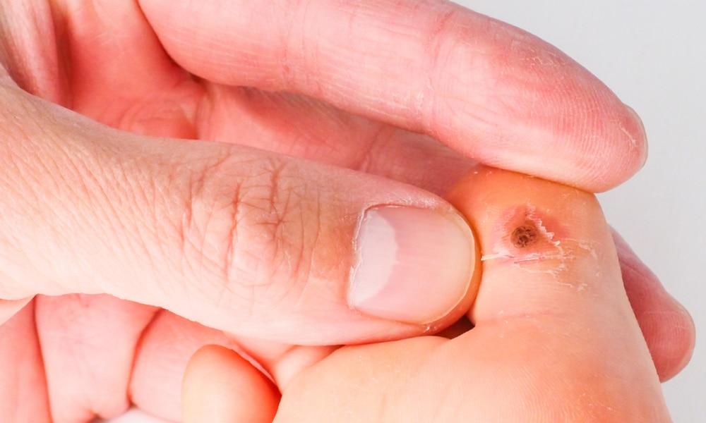 îndepărtarea paraziților papilloma virus lesions