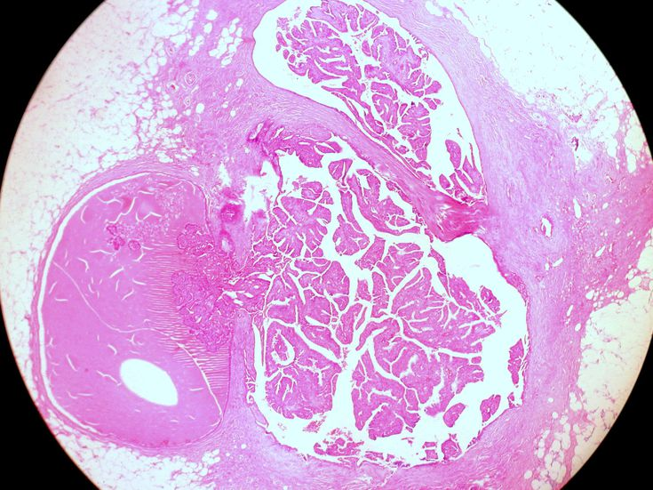 perioada de maturare a pinworms