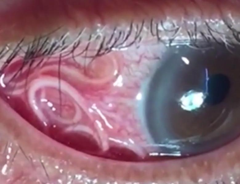 tratarea viermilor în ochi