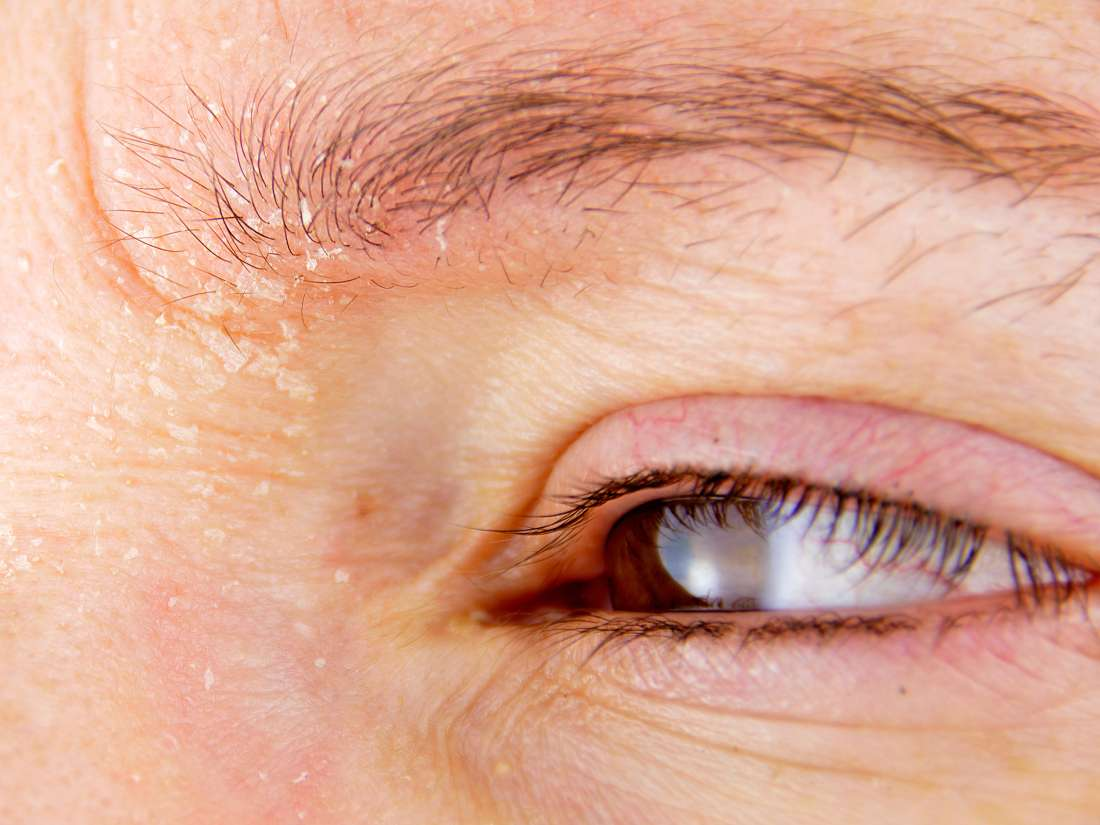 hpv negatif et dysplasie cancerul ochilor