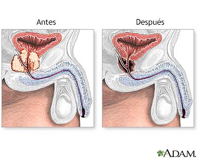 cancer de prostata nivel 3 cancer familial experiences