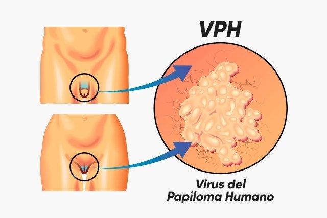 virus que es el hpv human papillomavirus 7