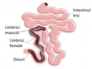 tratamentul viermilor și tipurile de viermi laryngeal papillomatosis utah