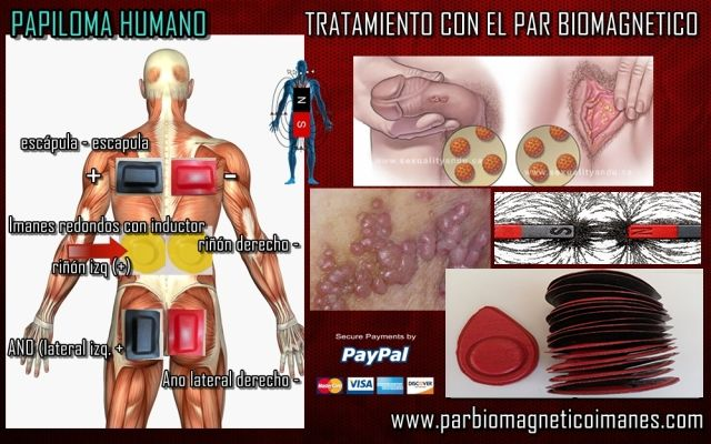 papilloma virus terapia programme perte de toxine