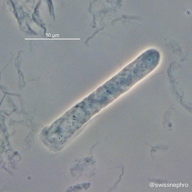 enterobius vermicularis na urina tratamentul nematodelor este eficient