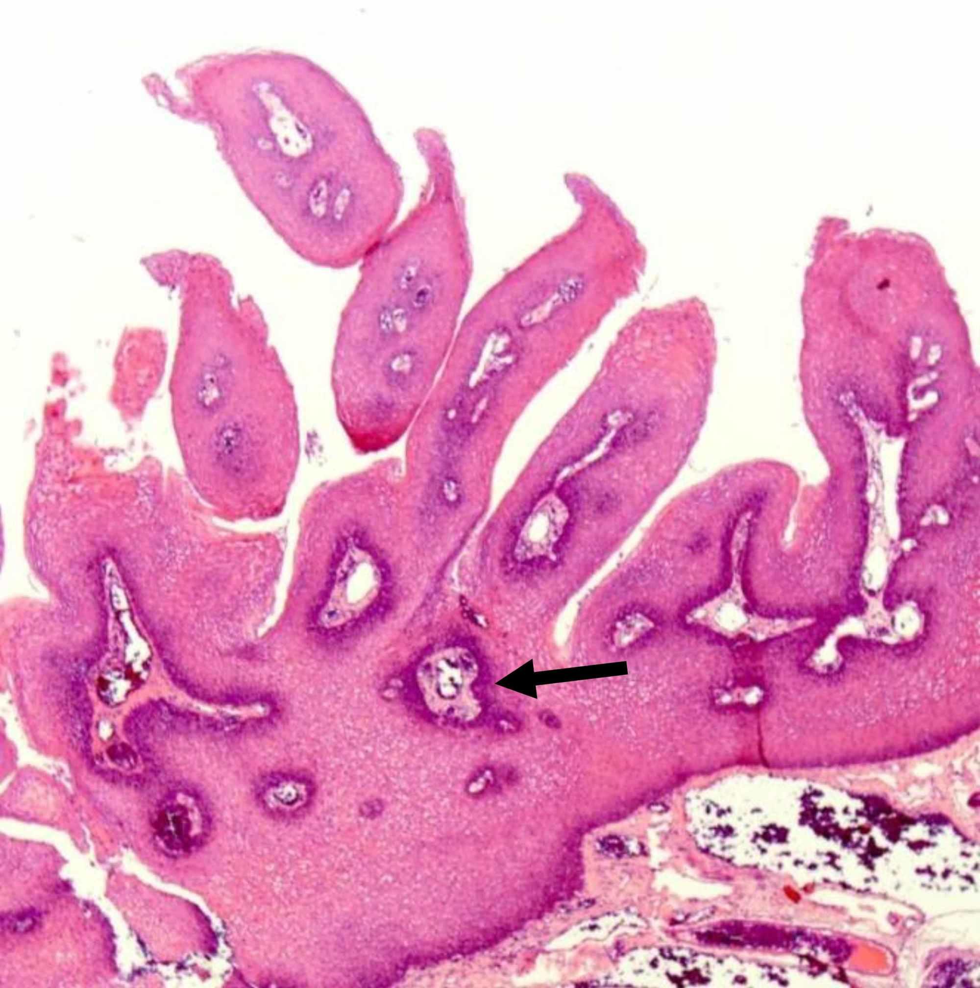 Squamous papilloma about - Paraziti intestinali guppy