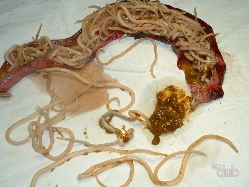 vierme rotunde în plămânii copiilor
