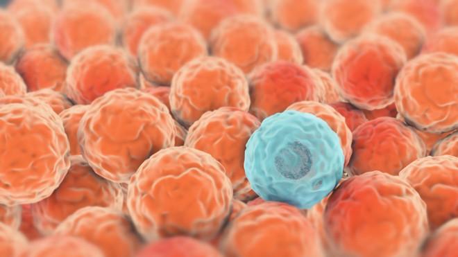 Cancerul anorectal. Cancerul anal: simptome, cauze si tratament