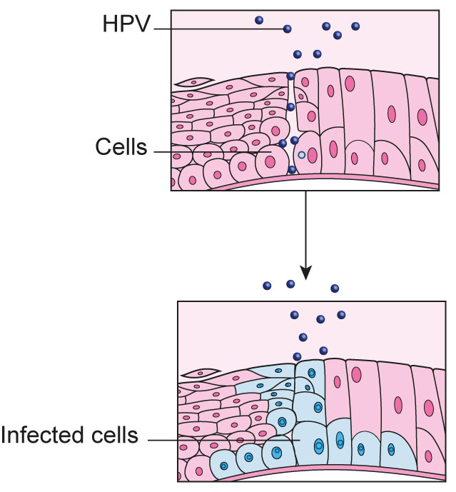 How hpv cause cancer