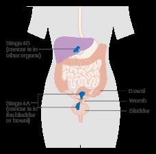 hpv et cancer colorectal hpv tumor suppressor genes