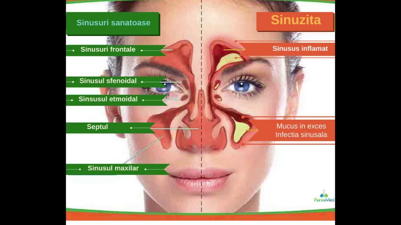 cancer sinusuri simptome se mosteneste cancerul