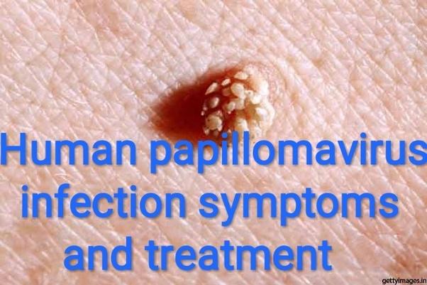 papilloma treatment