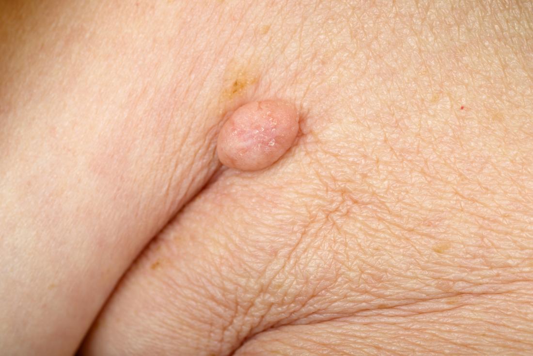 wart hiv virus