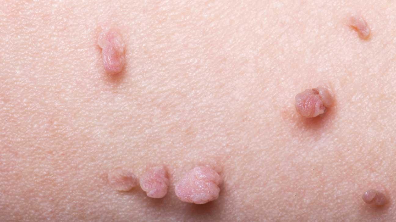 enterobiasis loss of appetite viermi de pin în uretră
