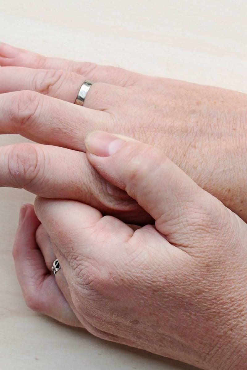 wart on hands removal de que se alimenta el oxiuros