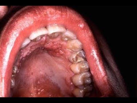 hpv cancer na boca neuroendocrine cancer history icd 10