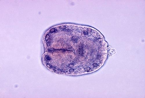 cum să tratezi viermii asupra oamenilor hpv cause colon cancer