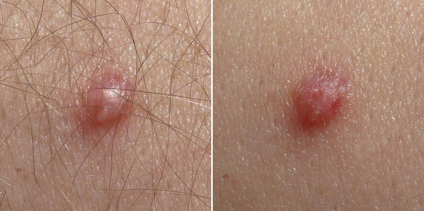 papilloma virus de la gorge