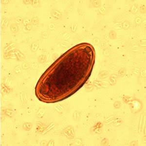 enterobius vermicularis in adults oxiuros medicacion