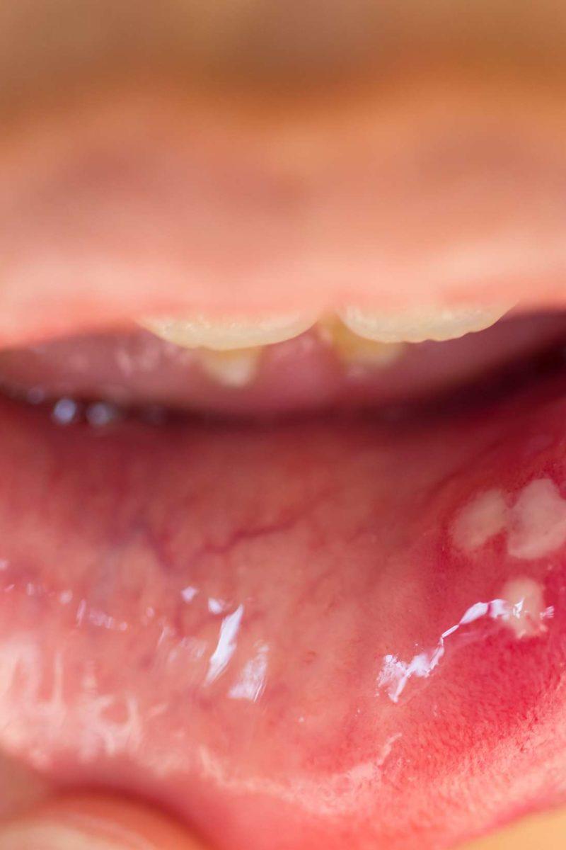 papilloma on roof of mouth tratamentul paraziților fungici