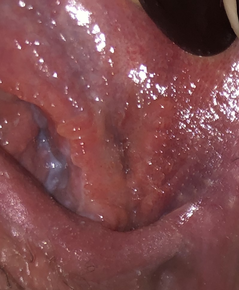 hpv vs herpes symptoms cancer abdominal simptome