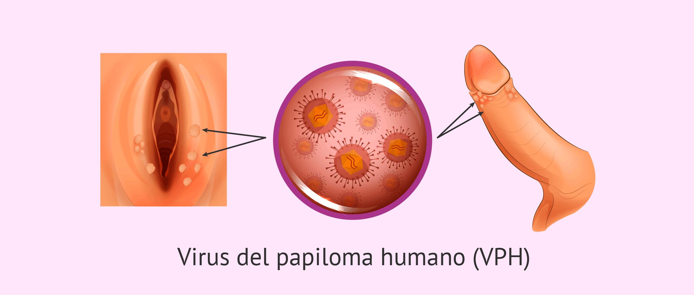 virus que es el hpv