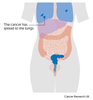 aggressive cancer of the womb human papilloma virus korunma yollar