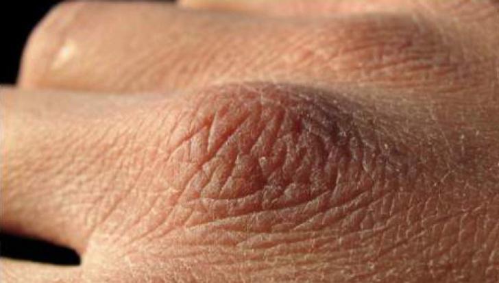 vaccin papillomavirus lequel que son los papilomas en los pies