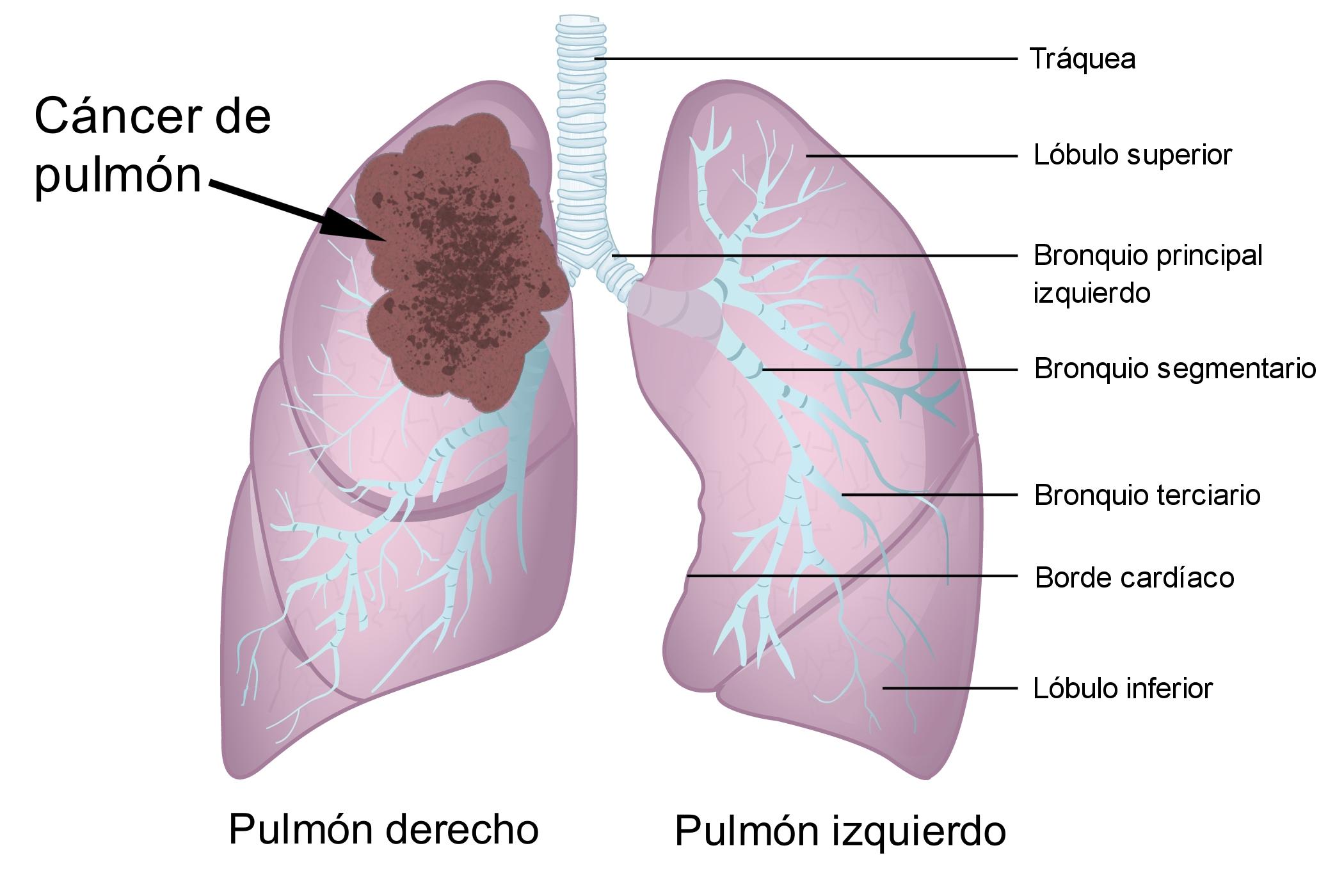 cáncer - Traducere în română - exemple în spaniolă | Reverso Context
