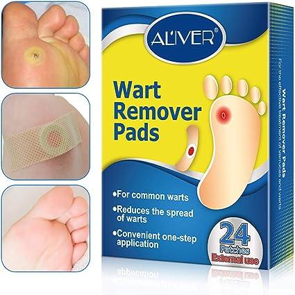 wart on my foot treatment