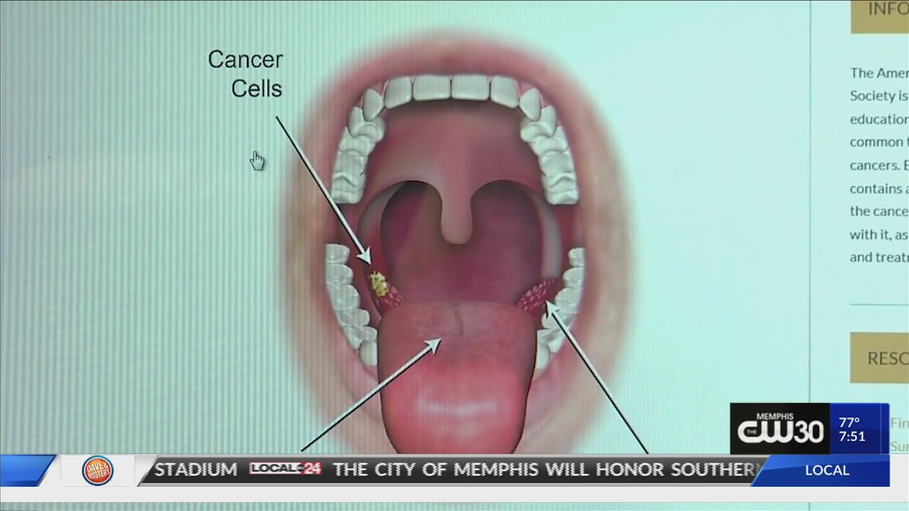 throat cancer from hpv