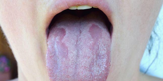 hpv in gat simptome cancerul imparatul tuturor bolilor