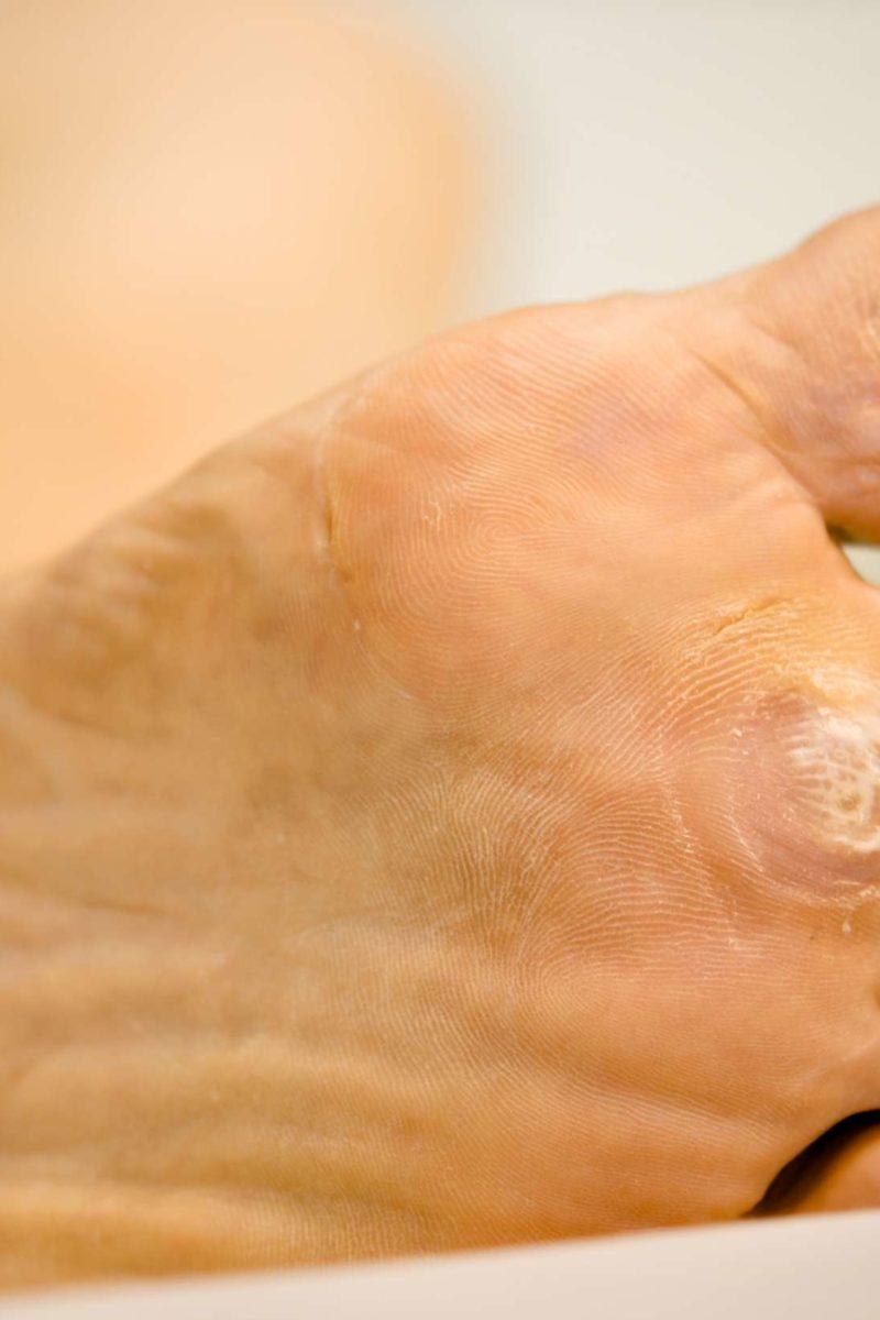 hpv dry feet