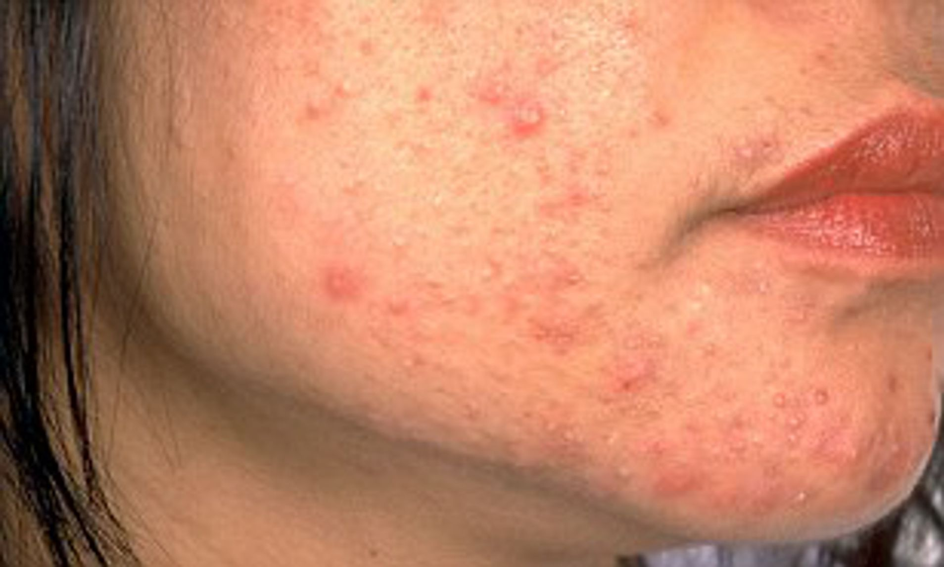hpv face acne